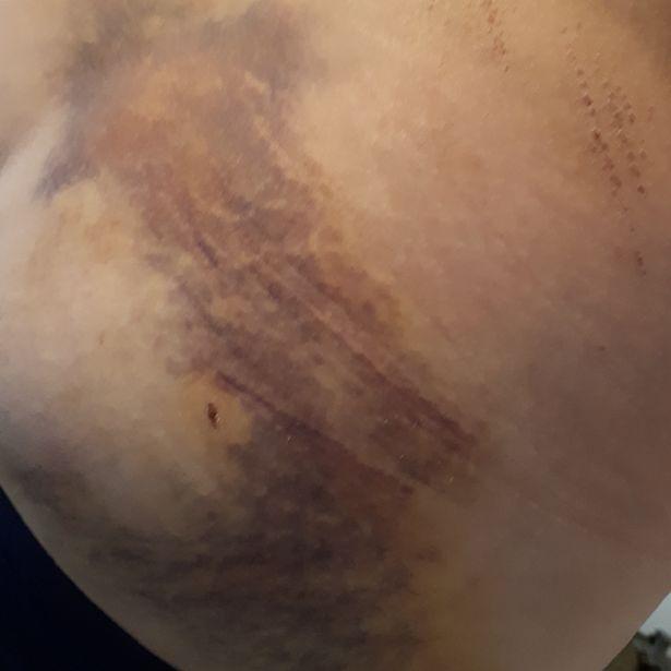 0_17072018-Bruising